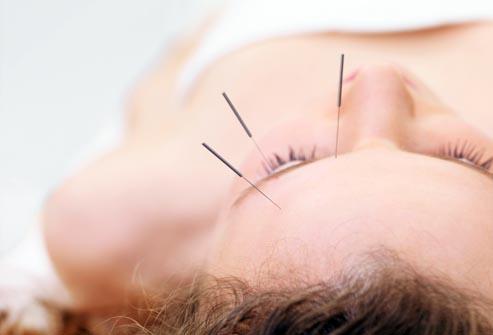 Emicrania? Si combatte con l'agopuntura