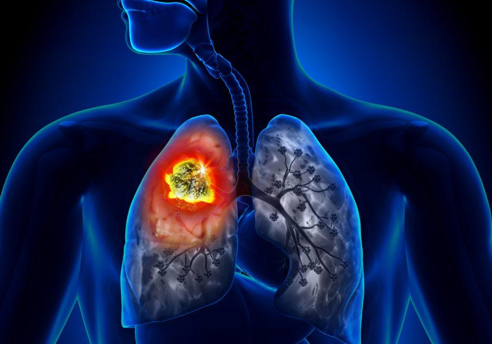 La cura del tumore al polmone volta pagina: la parola a Manuela Campanelli